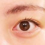 網膜静脈分枝閉塞症がルセンティス注射でほぼ完治
